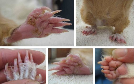 Polydactyly images.